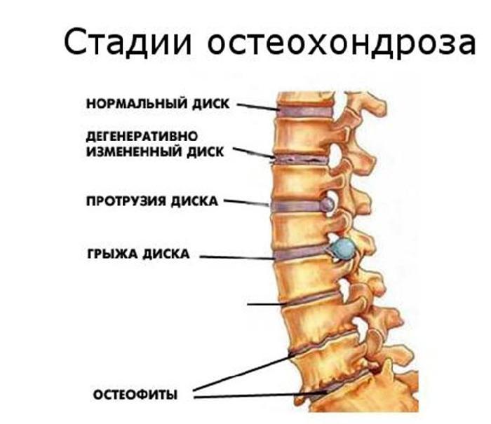 Остеохондроз дисков поясничного отдела 2 степени лечение